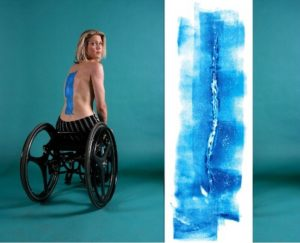 Through his art, Ted Meyer highlights the emotional impact of pain and healing on everyday people – patients, their families, and health care professionals – by creating works of art from scars.